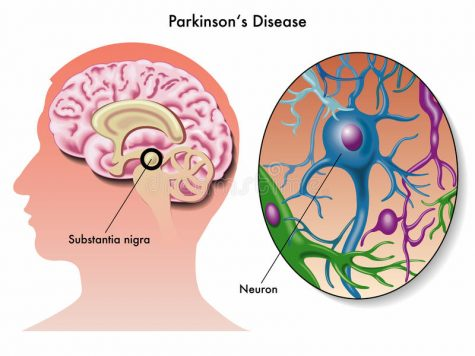 Study finds THC may inhibit Parkinson's disease