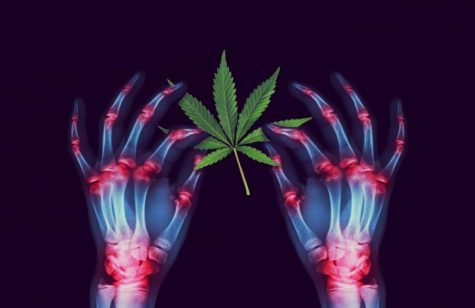 Cannabis as an anti-inflammatory: Here's what researchers have discovered