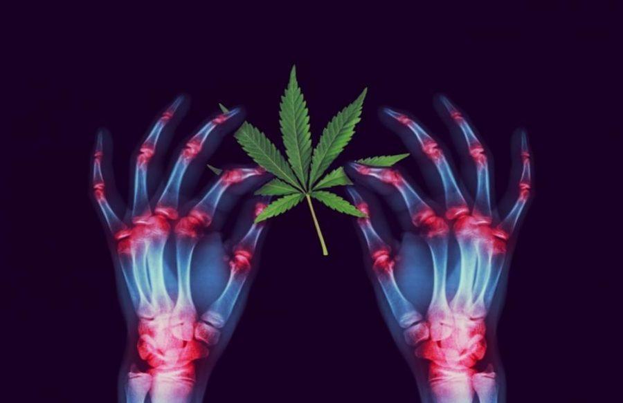https%3A%2F%2Fwww.google.com%2Fsearch%3Fq%3Dcannabis%2Binflammation%26safe%3Dactive%26source%3Dlnms%26tbm%3Disch%26sa%3DX%26ved%3D0ahUKEwjm86uZ3qnkAhUCknAKHWfWAfoQ_AUIEigC%26biw%3D1348%26bih%3D638%23imgrc%3DOVHxzIPKcn44KM%3A